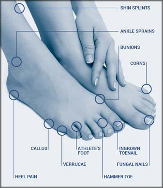 types of foot care